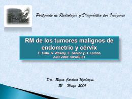RM de los tumores malignos de endometrio y cérvix E. Sala, S