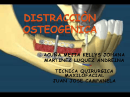 DISTRACCION OSTEOGENICA