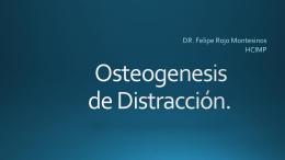 Osteogenesis de Distracción.