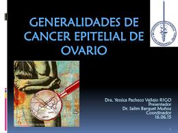 GENERALIDADES DE CANCER EPITELIAL DE OVARIO