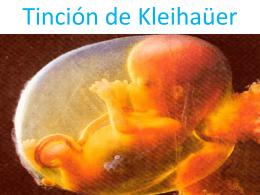 Tinción de Kleihaüer