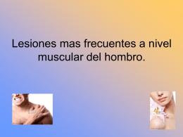 Lesiones mas frecuentes a nivel muscular del