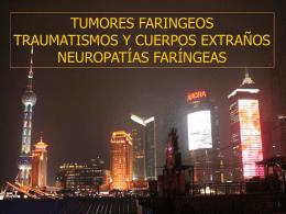 Tumores de la faringe - Medicordoba2007`s Blog