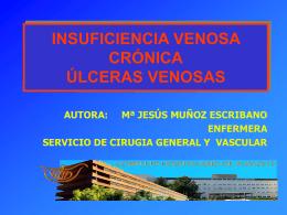 INSUFICIENCIA VENOSA CRÓNICA ÚLCERAS VENOSAS