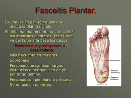 Fasceitis Plantar.