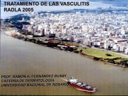 TRATAMIENTO DE LAS VASCULITIS