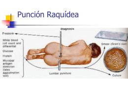 Punción Raquídea