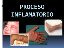 PROCESO INFLAMATORIO - biologiainstitutolasalle