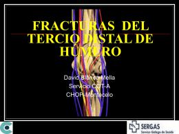 FRACTURAS DEL TERCIO DISTAL DE HÚMERO
