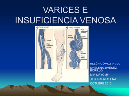 VARICES E INSUFICIENCIA VENOSA
