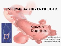 ENFERMEDAD DIVERTICULAR - SCPD Sociedad Canaria de