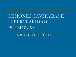LESIONES CAVITADAS E HIPERCLARIDAD PULMONAR