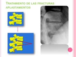 Tratamiento de las fracturas aplastamientos