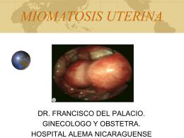 Miomas Uterinos - Clases y Libros