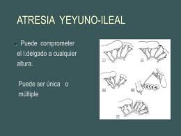 ATRESIA YEYUNO-ILEAL - Facultad de Medicina UFRO