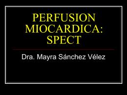 PERFUSION MIOCARDICA - ELECTROCARDIOGRAFIA