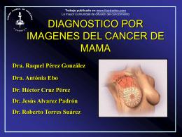 IMAGENOLOGIA DE LA MAMA