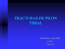 FRACTURAS DE PILON TIBIAL - SOGACOT