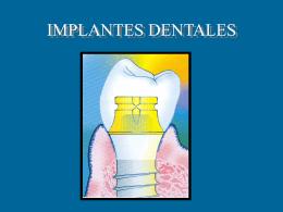 IMPLANTES DENTALES - www.Cuencanos.com™ :: La …