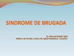 SINDROME DE BRUGADA - Docencia Rafalafena | Articulos