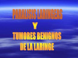 TUMORES BENIGOS DE LA LARINGE