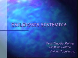 ESCLEROSIS SISTEMICA - OdontoChile el sitio Web de la