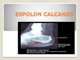 ESPOLON CALCANEO - uneve2311 | Just another …
