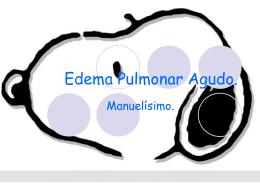 Edema Pulmonar Agudo. - Seccionseis's Weblog