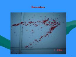 Roceadura