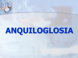 ANQUIGLOSIA