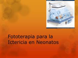 Fototerapia para la ictericia en neonatos