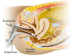 PROCESO CANCER CERVIX Y UTERO