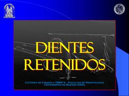 DIENTES RETENIDOS - cirugiayortodoncia