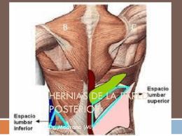 Hernias de la pered posterior