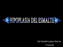 HIPOPLASIA DEL ESMALTE