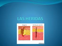 LAS HERIDAS