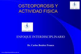 OSTEOPOROSIS Y ACTIVIDAD FISICA