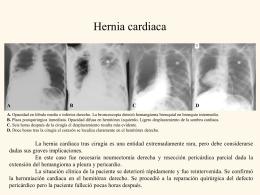 Cardiac hernia