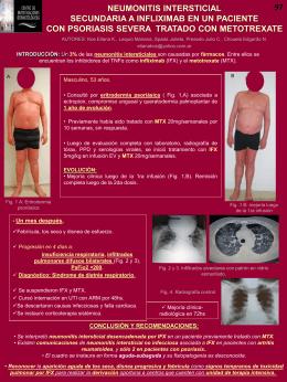Neumonitis intersticial secundaria a Infliximab en un