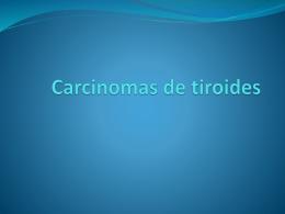 Carcinomas de tiroides
