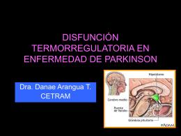 Trstornos termoregulatorios enfermedad de Parkinson