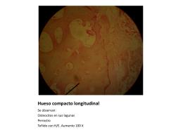 Hueso compacto longitudinal - SEVU