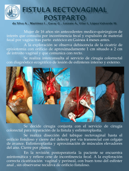 FISTULA RECTOVAGINAL POSTPARTO