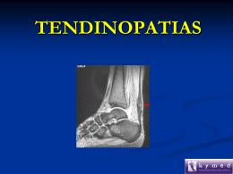 Tendinosis del Tibial Anterior