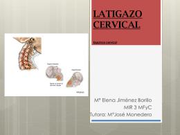 Latigazo cervical - Docencia Rafalafena | Articulos