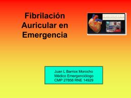 Fibrilacion Auricular en emergencia