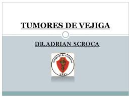 TUMORES DE VEJIGA