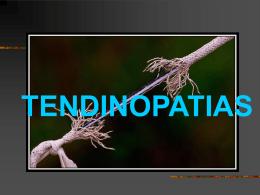 TENDINOPATIAS