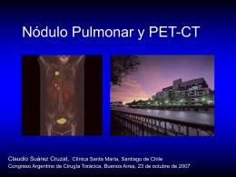 cancer pulmonar etapa I