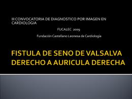 DRENAJE ANOMALO DE VENAS PULMONARES